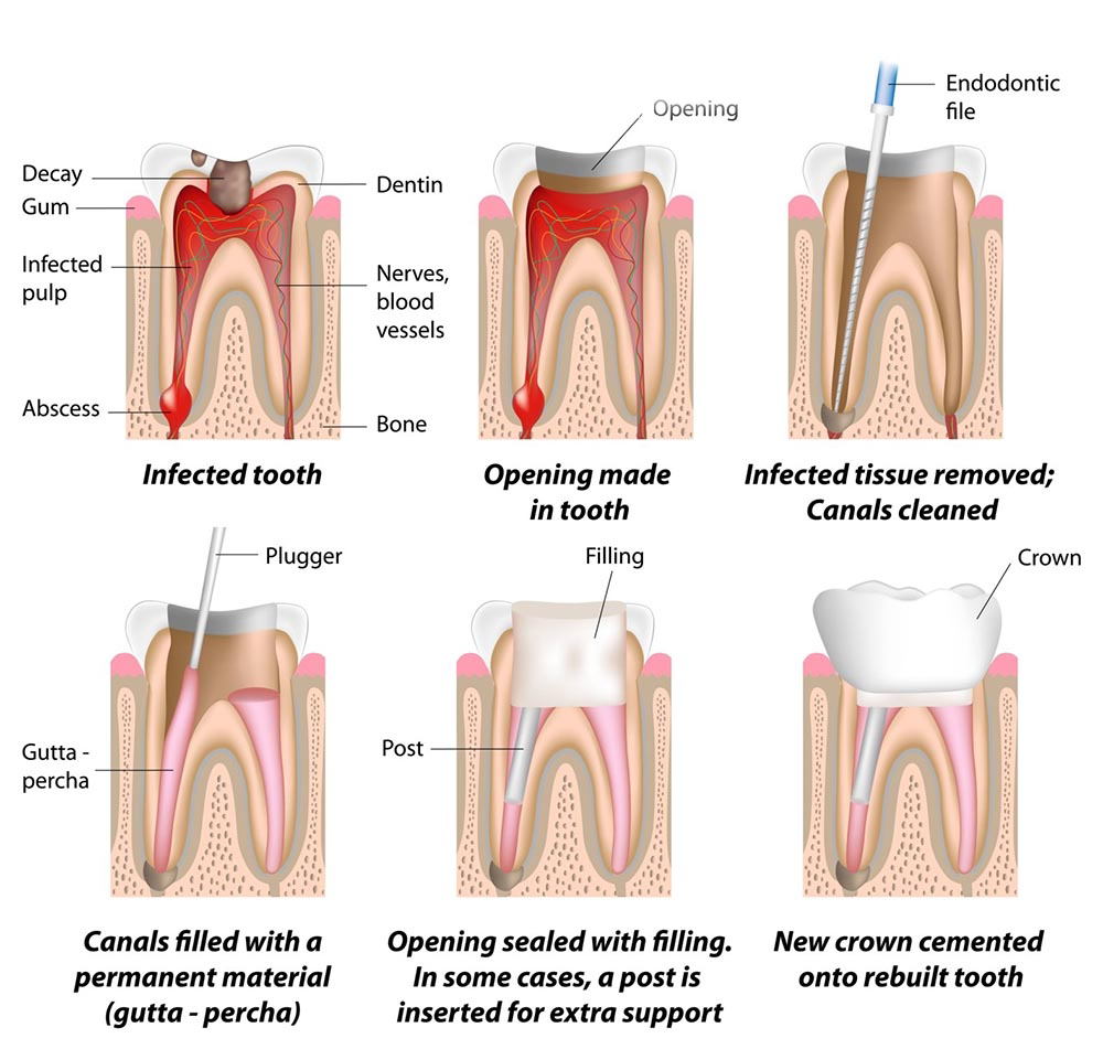 root canal treatment cost graph